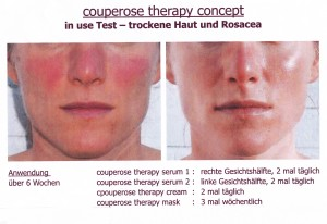 Couperose Therapie